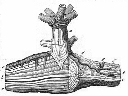 Saugwurzel (Haustorium) der Mistel (Viscum alba)
